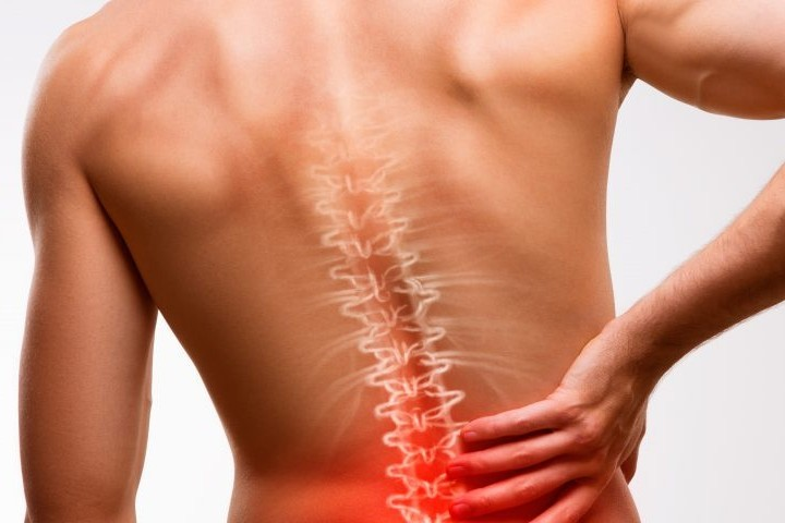 Your Back Pain Could be Ankylosing Spondylitis