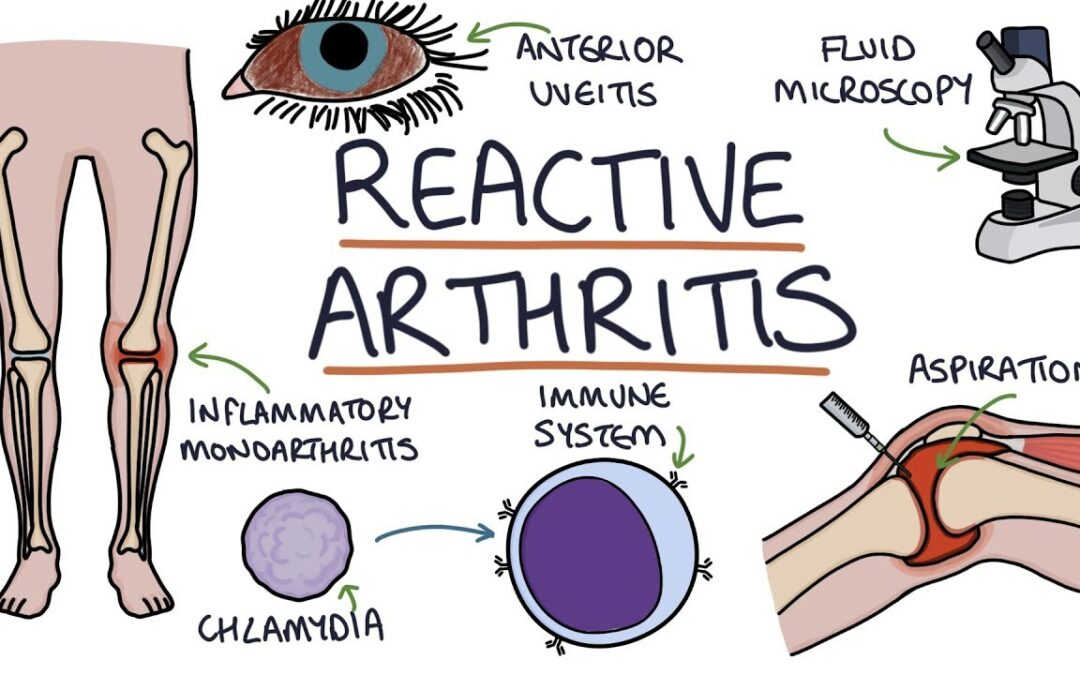 Reactive Arthritis: Uncomfortable but Usually Not Serious