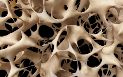 Common Treatments for Osteoporosis